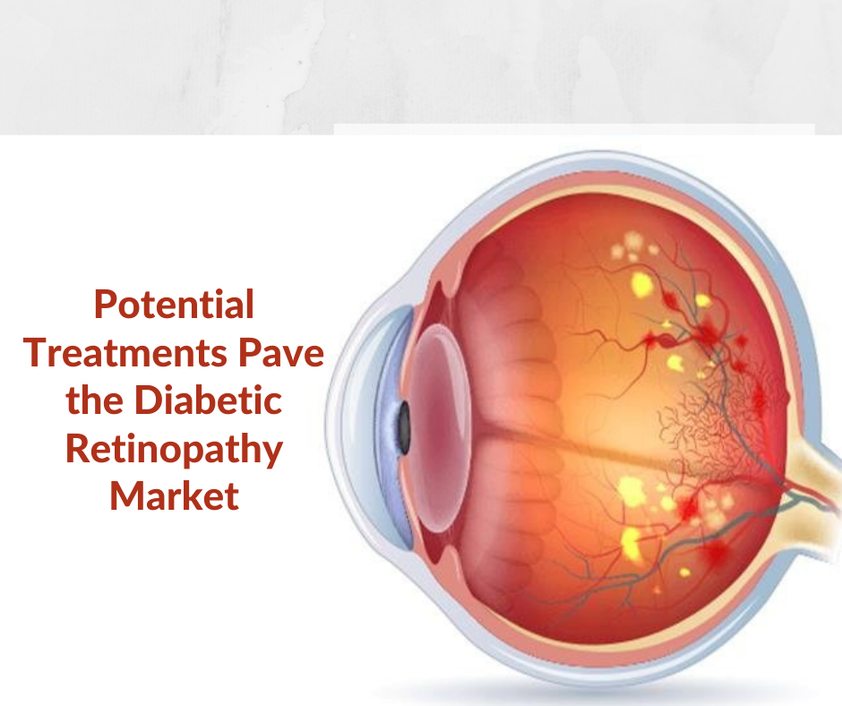 Potential Treatments Pave the Diabetic Retinopathy Market